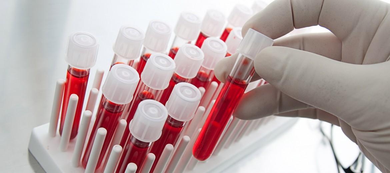 Хематология - заболявания на кръвта