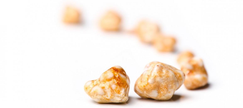 Урология - камъни в бъбреците