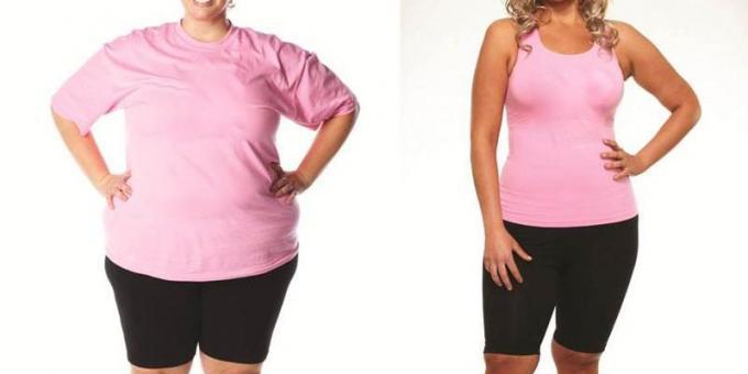 Обезитас затлъстяване.Бариатрична и диабетна хирургия.