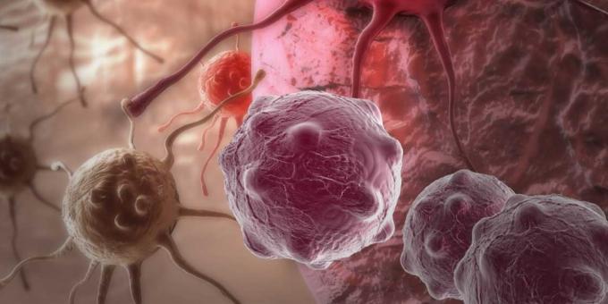 Радиационна онкология - лечение на рак с TrueBeam